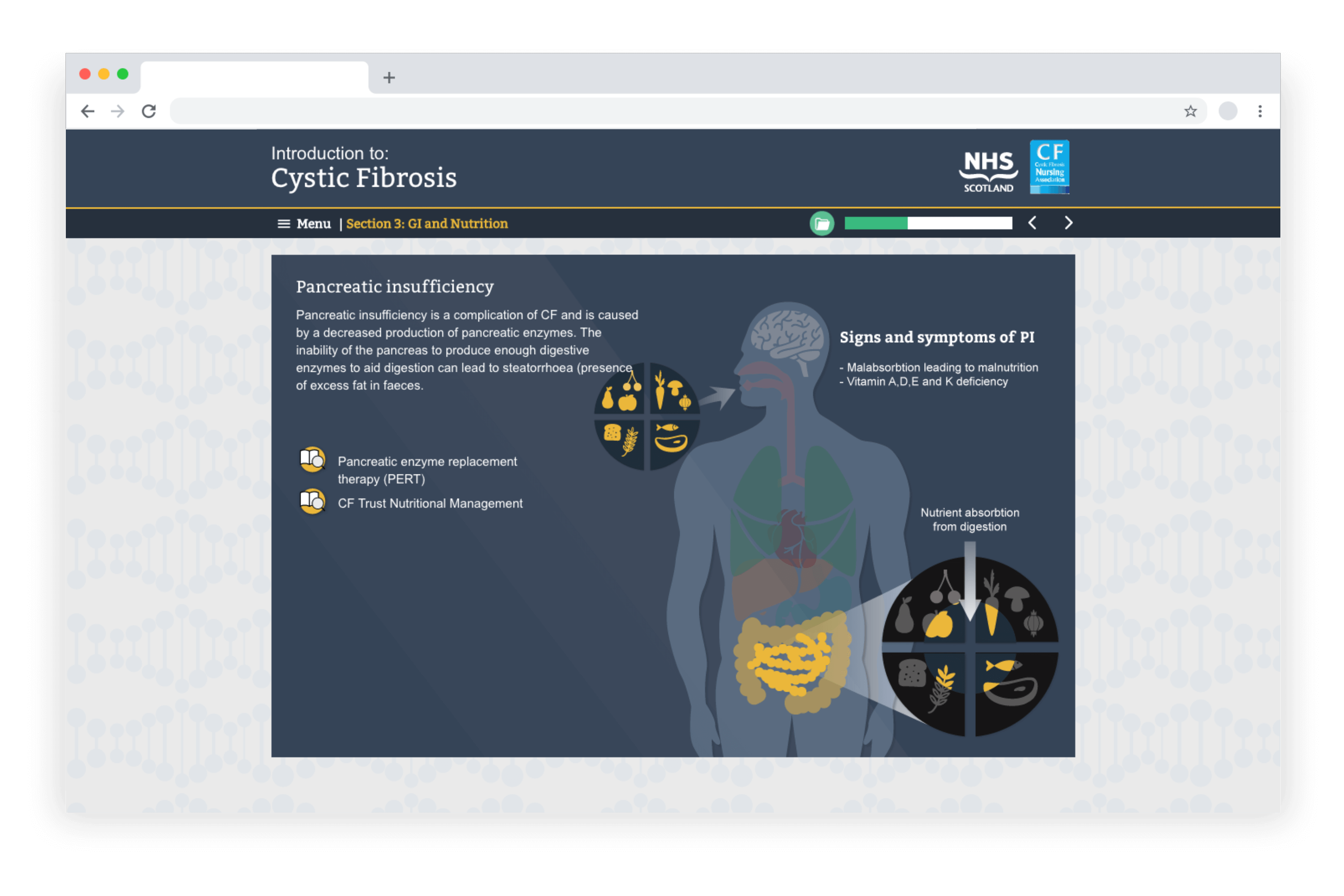 Example e-learning showing a Cystic Fibrosis course developed in LAB Advanced