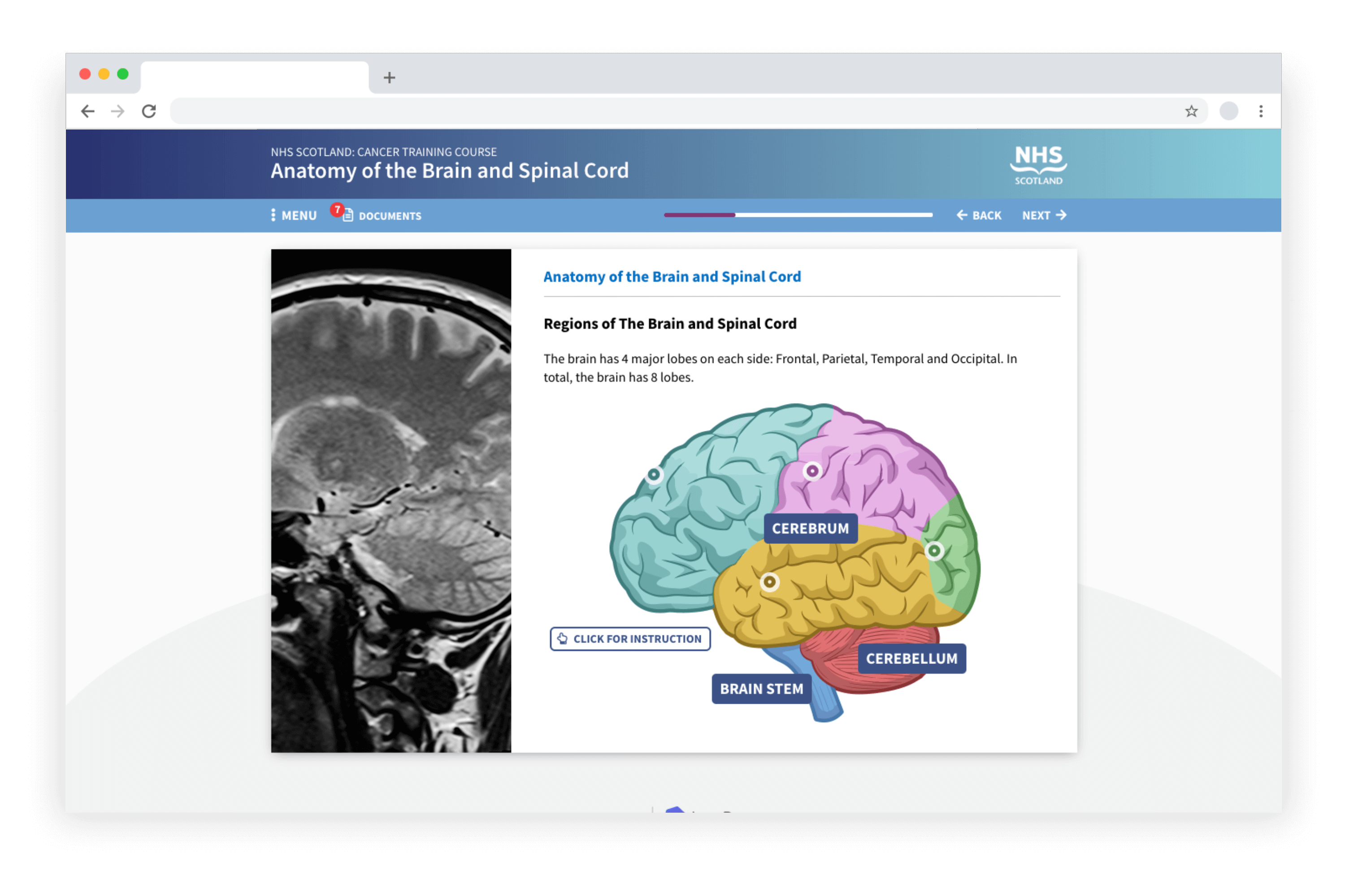 Example e-learning showing an Anatomy of the Brain and Spinal Cord course developed in LAB Advanced